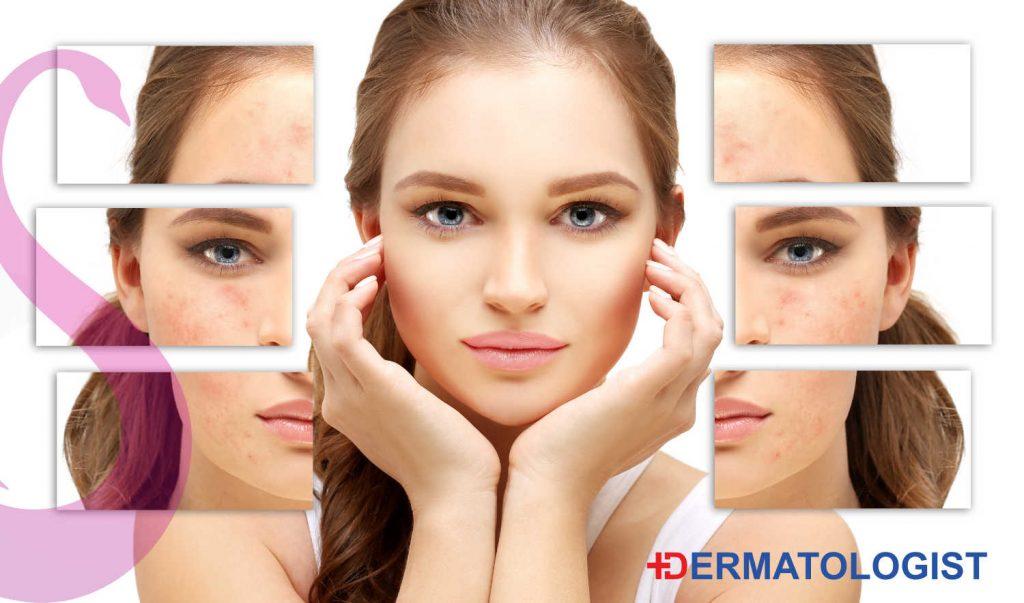 Dermatologist - expert skin advice