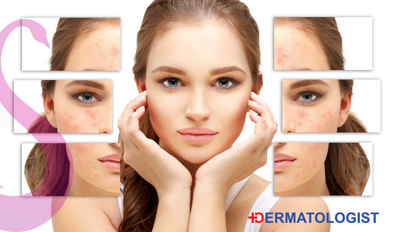 Dermatologist – Expert Skin Advice